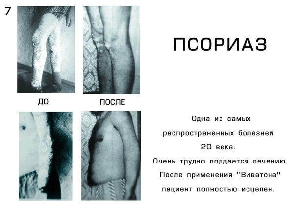 псориаз лечение